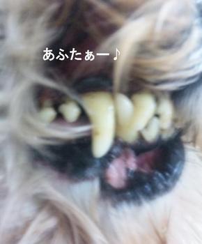 歯石除去2.jpg
